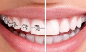 Что необходимо знать об ортодонтии
